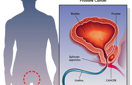 חשד לסרטן הערמונית? הכירו – ביופסיית היתוך פיוז'ן